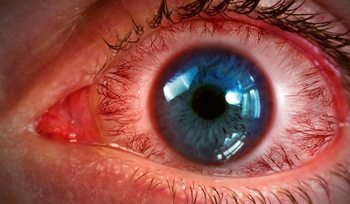 Swollen or dilated blood vessels cause red eyes.