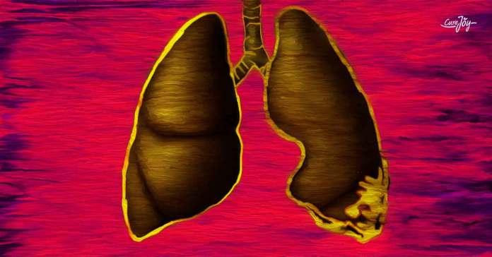 symptoms of mesothelioma