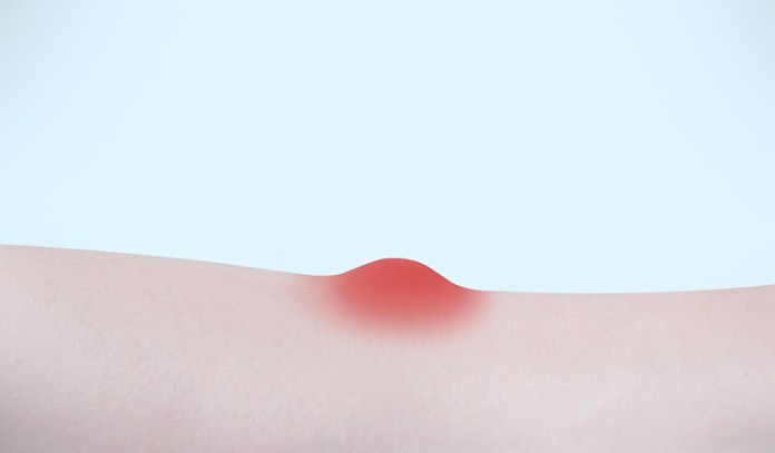 Sweat Lumps Are Bumps Caused Due To Blocked Sweat Glands