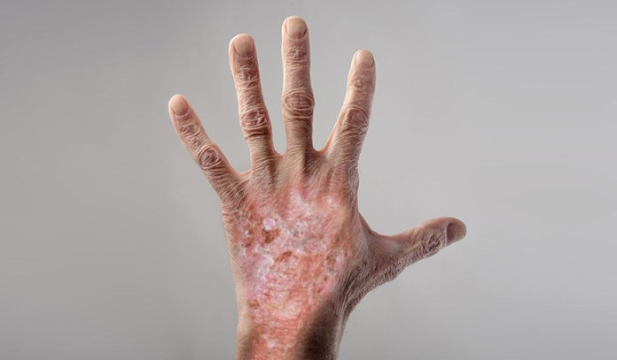 Blisters, hyperpigmentation, scars, and erosions are symptoms of PCT.
