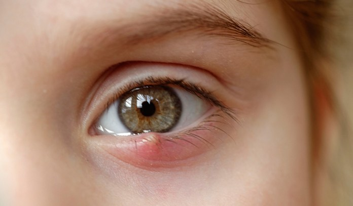 painful bump under eyelid