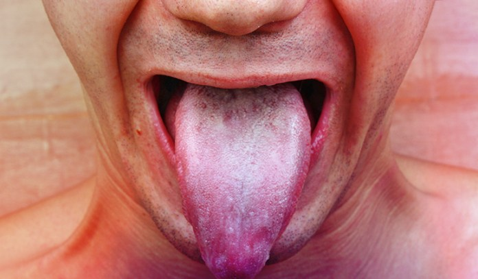 If you experience any of the above symptoms, you can confirm if you have a yeast overgrowth in your body by performing a spit test)