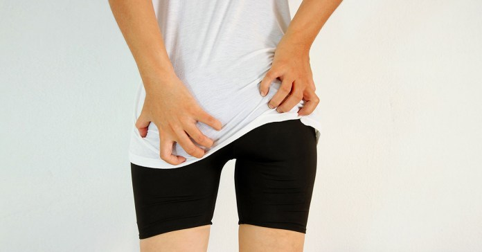 Reasons your butt itches like crazy.