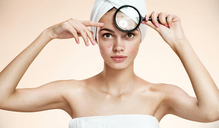 Acne along the hairline could be caused by the use of hair products loaded with harmful chemicals