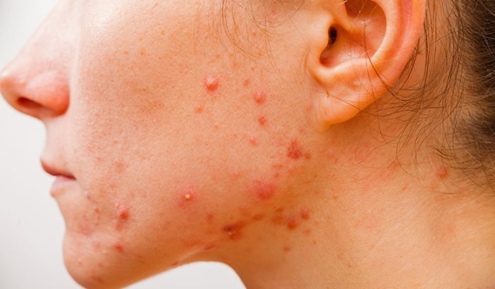 Acne flare-ups on the chin and jawline are usually an indication of hormonal imbalance