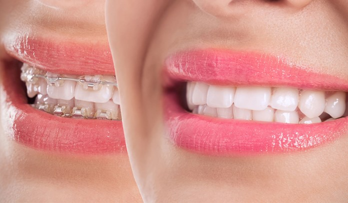 Adult Braces Correct Your Improper Teeth Positions