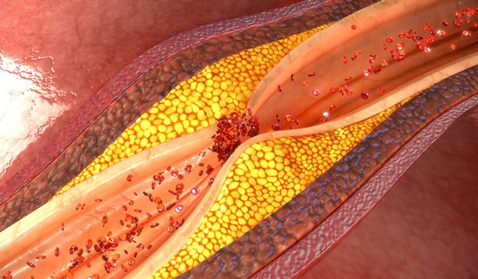 Blocked Arteries Is The Problem, Not High Blood Pressure