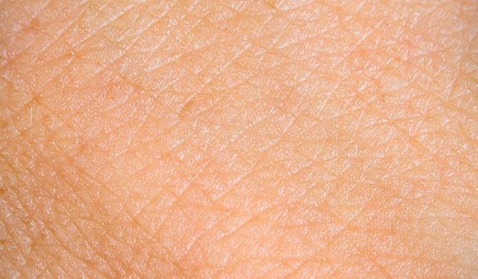 Cellulitis or bacterial <!-- WP QUADS Content Ad Plugin v. 2.0.27 -- data-recalc-dims=