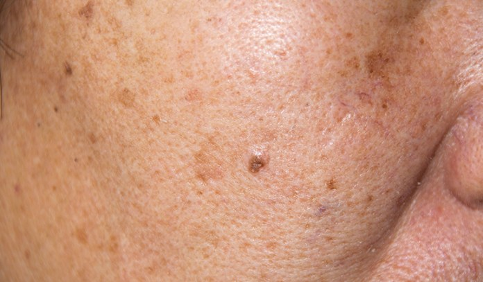 Buttermilk can reduces symptoms of eczema.