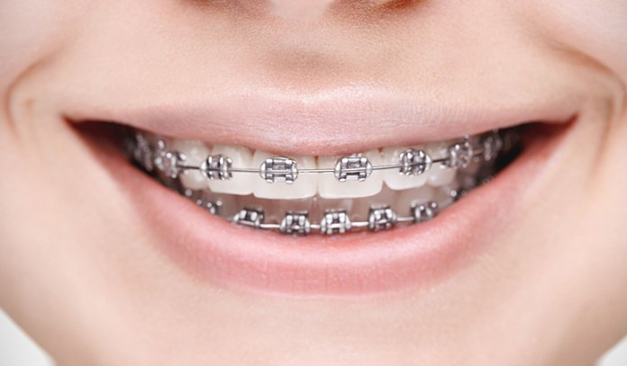 Metal Braces Are The Most Common Ones