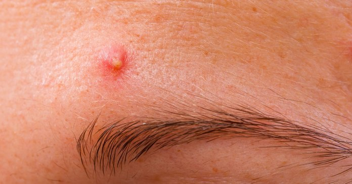 Pimples On Eyebrows Causes And How To Get Rid Of It