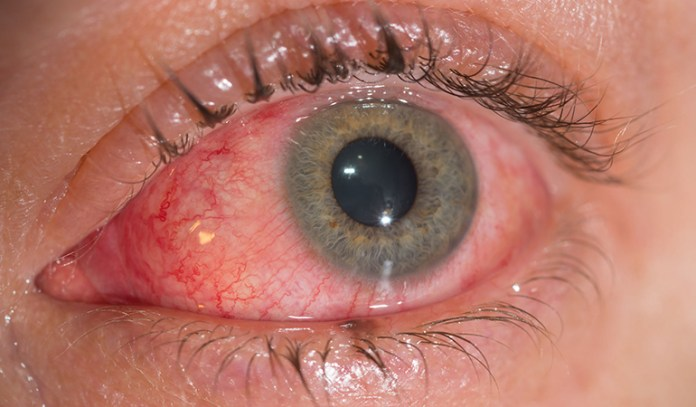 Pink eye is usually mild and heals on its own.