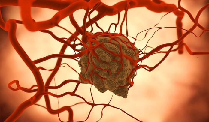 Antioxidants help prevent cancer