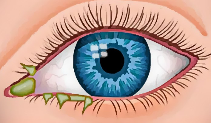 Sticky eye discharge in toddlers can be triggered by a cold, an infection, an allergy, or even conjunctivitis.
