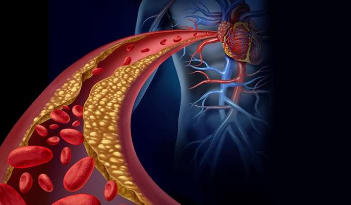 What affects cholesterol level