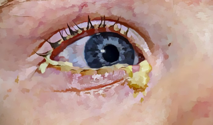 Sticky eye discharge in toddlers usually happens because of an accumulation of tears in the narrow tear ducts.