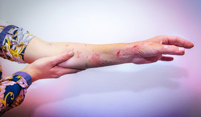 Chemical burns can be prevented by taking certain safety measures and precautions.