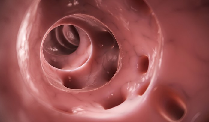 Diverticulitis is a digestive condition that affects the large intestine.