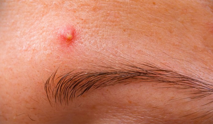 Poor hygiene can cause sebum build-up and hence forehead acne