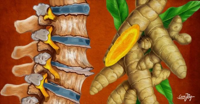 natural-treatment-degenerative-disc-disease