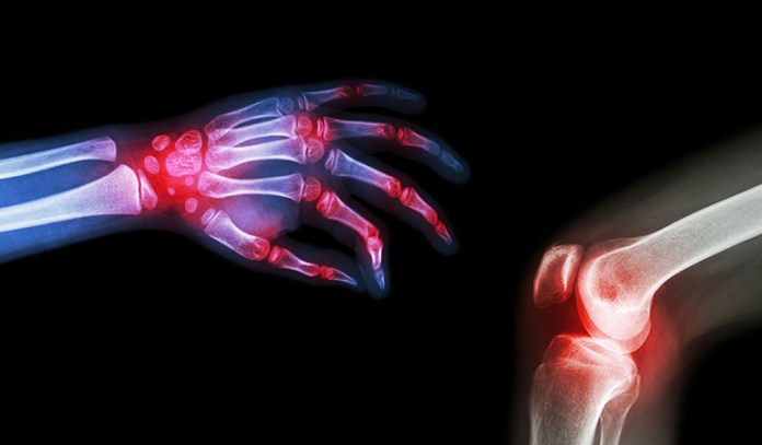 Women, athletes, and osteoarthritis patients are more at risk of developing ganglion cysts.