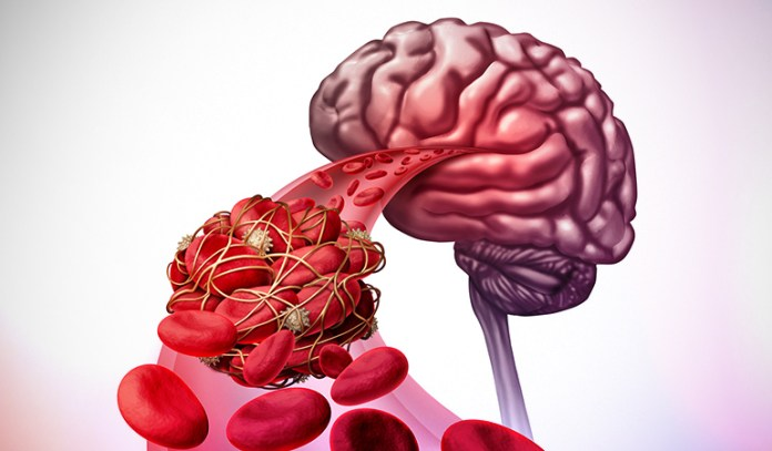 Causes of an aneurysm and stroke