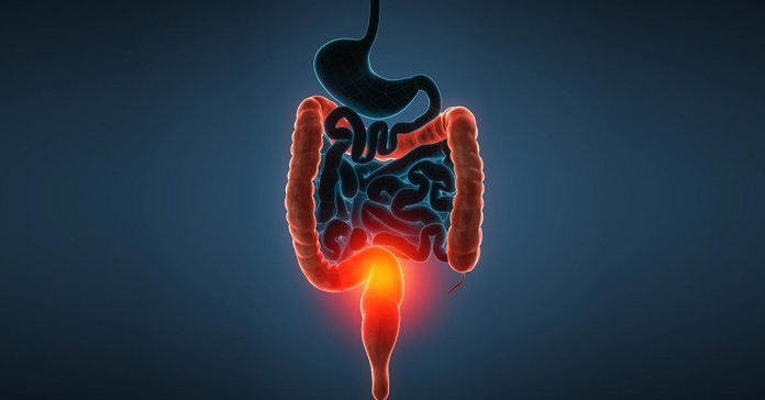 Distal Ulcerative Colitis: Causes, Symptoms, And Treatments