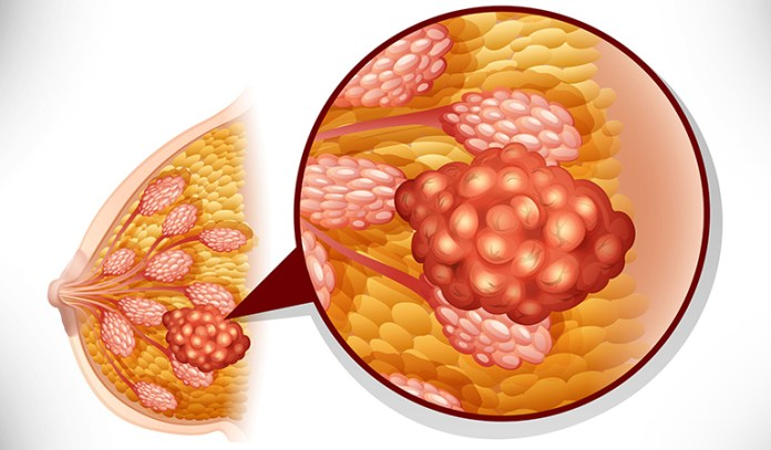 Cancer spreads to lymph nodes in stage 2.