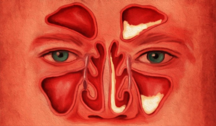 Different types of fungal sinusitis