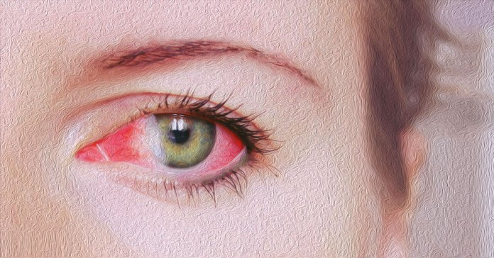 Vitamin A deficiency leads to eye diseases.