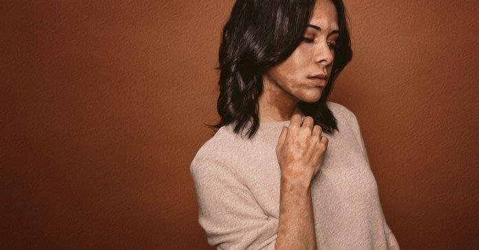 Home remedies for vitiligo.