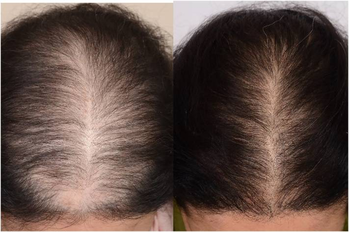 Woman with androgenetic alopecia (Savin II-2), before and 4 months after five 'platelet-rich plasma' treatment sessions