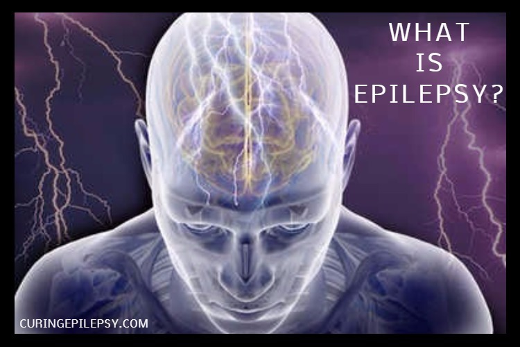 webmd_rm_photo_of_seizure_illustration