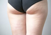 How Can I Get Rid of Cellulite on Fast?