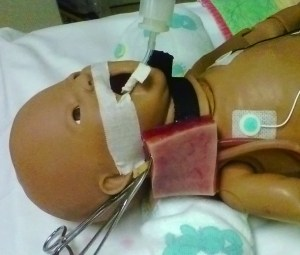 ECMO Cannulation