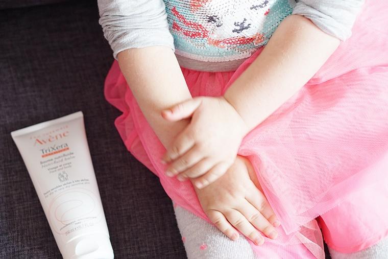kinderen gevoelige huid