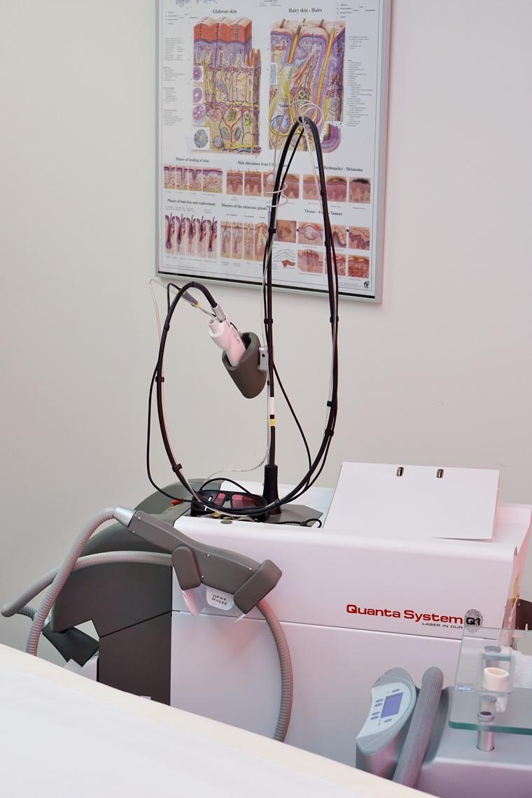 laserontharen gezicht ervaring 5 - Personal update | Hoe gaat het nu met het laser ontharen in mijn gezicht? #2