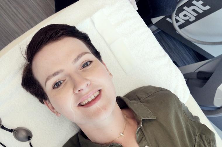 laserontharen gezicht ervaring 6 - Personal | Mijn ervaring met laserontharen in het gezicht #1