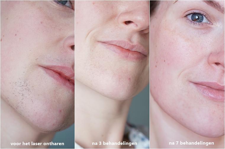 triaderm arnhem laser ontharen gezicht - Personal update | Hoe gaat het nu met het laser ontharen in mijn gezicht? #2