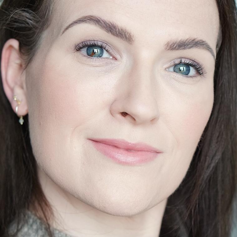 laserontharing gezicht ervaring Triaderm 4 - Personal | Een update over de laserontharing tegen overbeharing in mijn gezicht