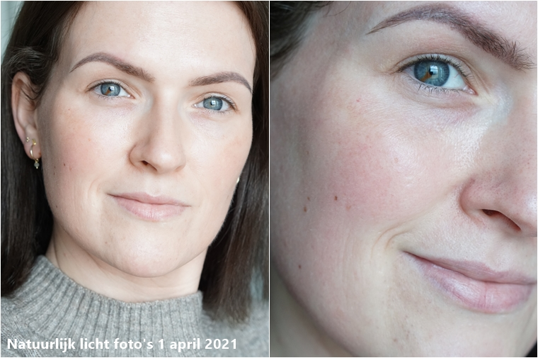 c me skincare ervaring 2 maanden 1 - Skincare Challenge | Mijn ervaring met C-ME Skincare van DermaClinic