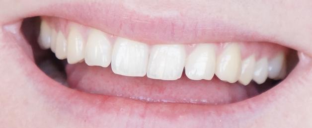 clean white tilburg 6 - Ik onderging... een Clean White behandeling!
