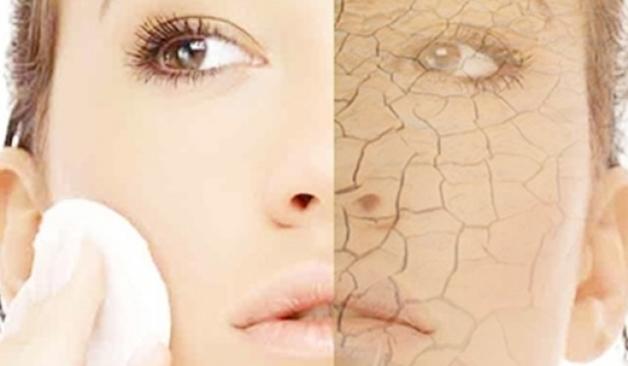 drogehuid - Huidtypes | De droge huid