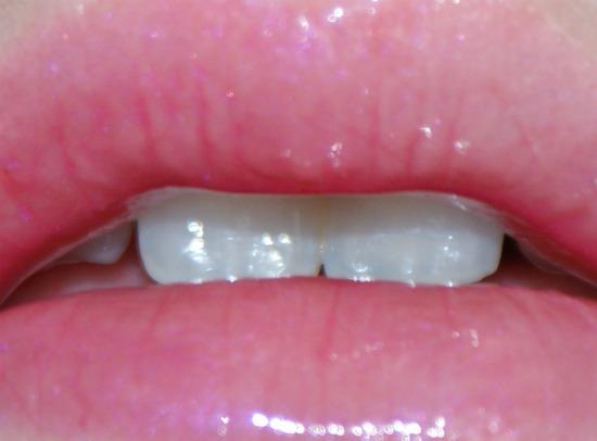 etosflavourygloss3 - Etos Flavoury Gloss