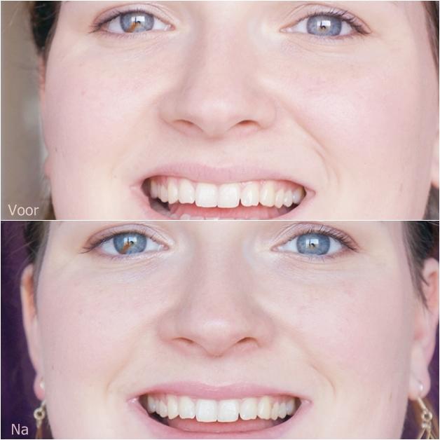 tanden bleken bright white 4 - Tanden bleken | Bright White strips & pen