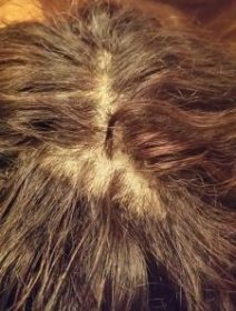 Repair Lace Wig - Hairpieces