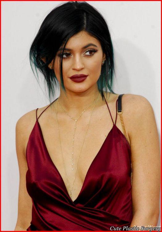 Kylie Jenner Plastic Surgery Transformation - Celebrities ...