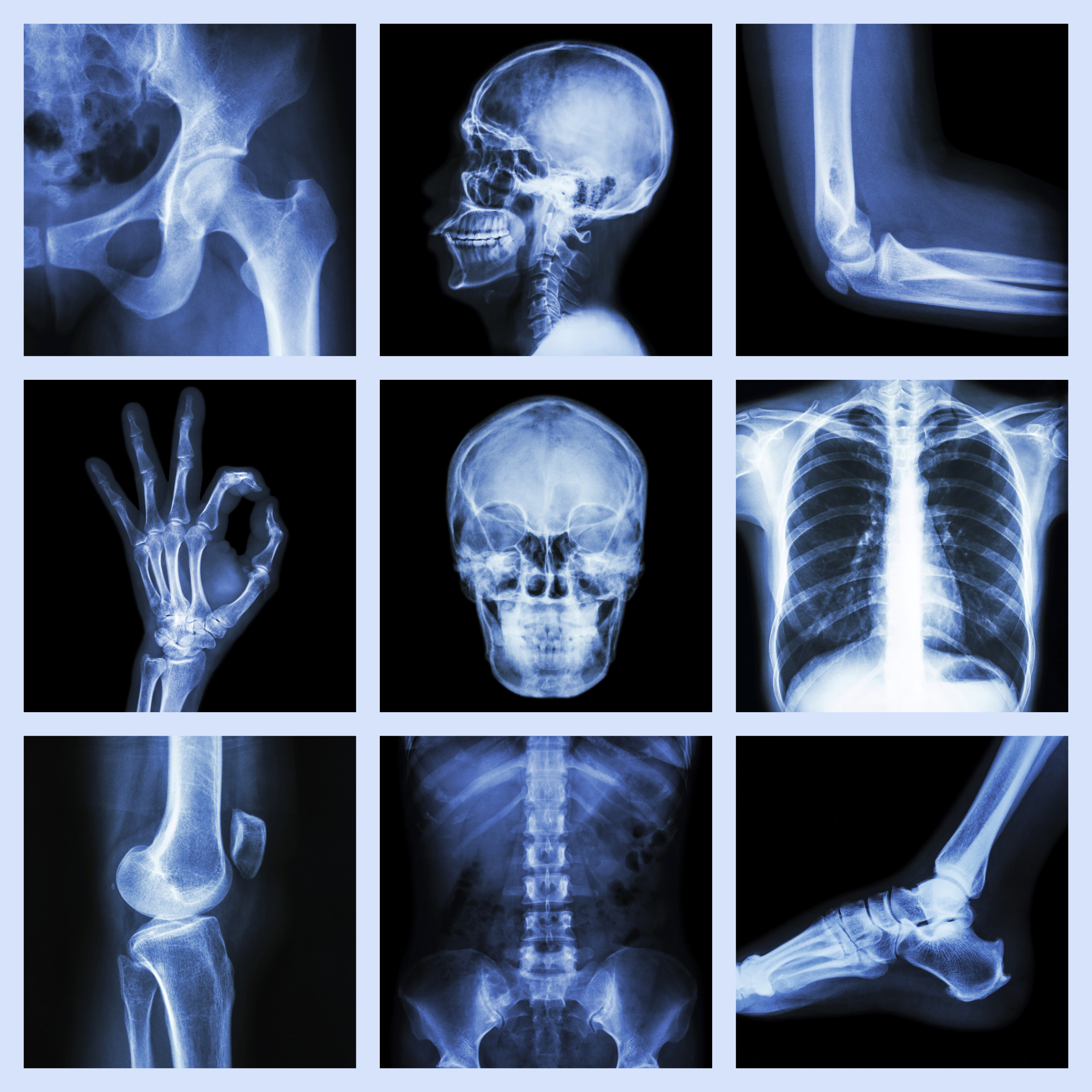 Cvcc Hosts Radiography Program Open House For Those Interested In Enrolling