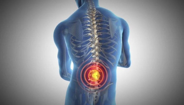 arthritis back pain_Cweb
