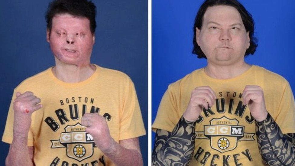 World's First-Ever Successful Face And Hands Transplant